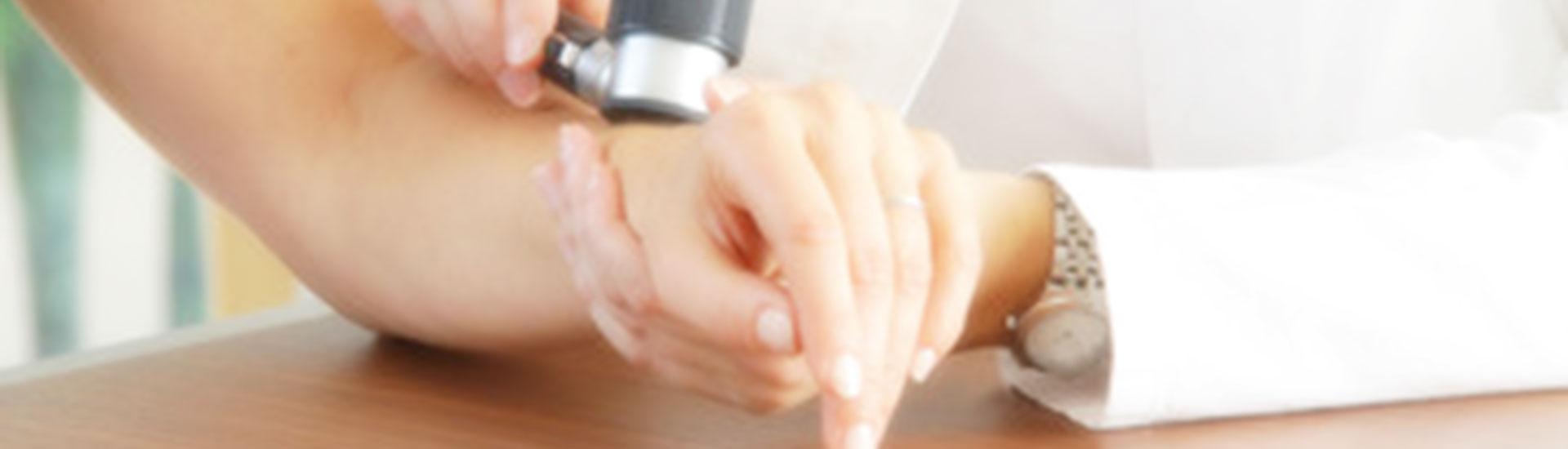 dermatologija dermatoskopija dermatolog dermatovenerolog